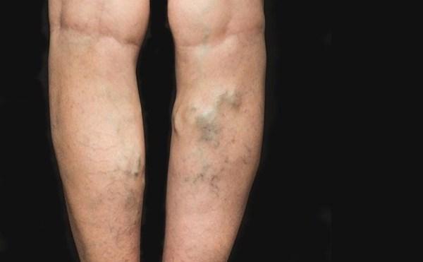 összenyomódás a lábakon a visszerekből