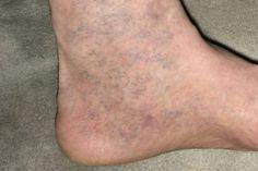 A varikozus láb kékre vált, mit tegyen - Visszér, ha a vénák megrepednek