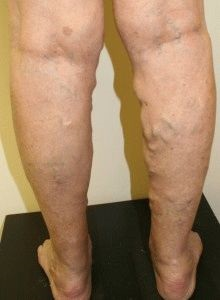 illóolajok a varikózisos lábakhoz