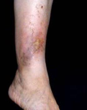 ajánlások a lábműtét után visszerek