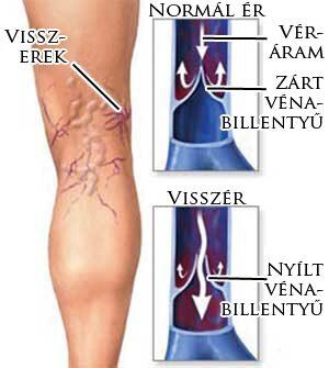hogyan kezdődik a visszér a lábakon? hogyan lehet eltávolítani a varikózisos zúzódásokat