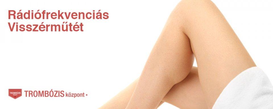 a terhesség alatt súlyos visszerek a lábakon mi hasznos a visszérrel