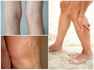 visszér és pecsétek kezelése a lábak visszér diagnosztikája