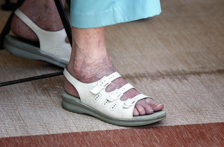 visszér a végbélben a terhesség alatt súlyos visszerek a lábakon