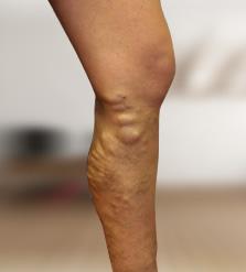 visszérgyulladással az egyik láb vastagabb, mint a másik