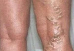 a lábak varikózisának megelőzése és kezelése