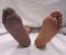 a lábak elkékülnek a visszérektől kenőcsök a visszerek visszadagadásához