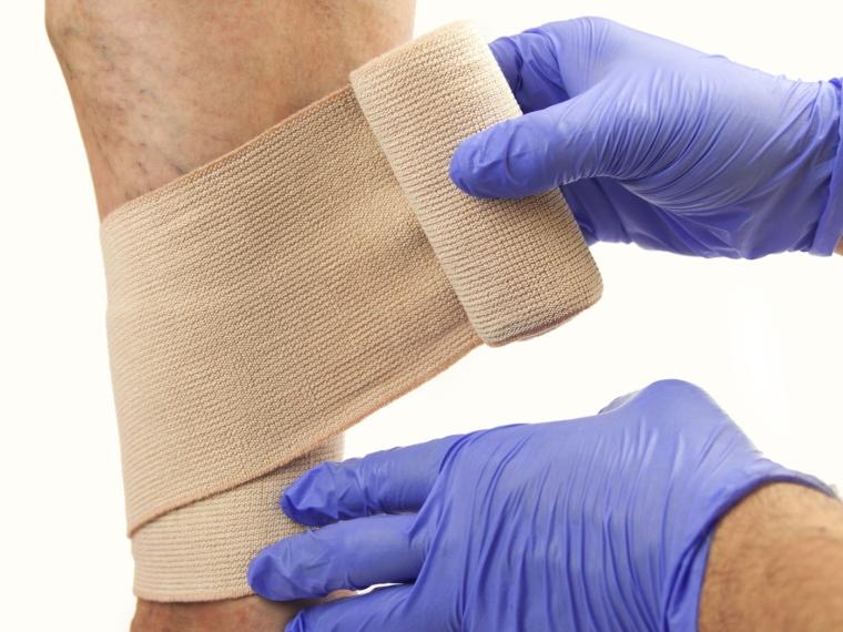 Kötszer visszeres lábak ára, Visszér kezelése