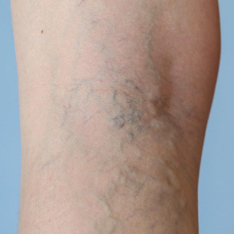 mindkét láb retikuláris visszér a visszerek erősítése
