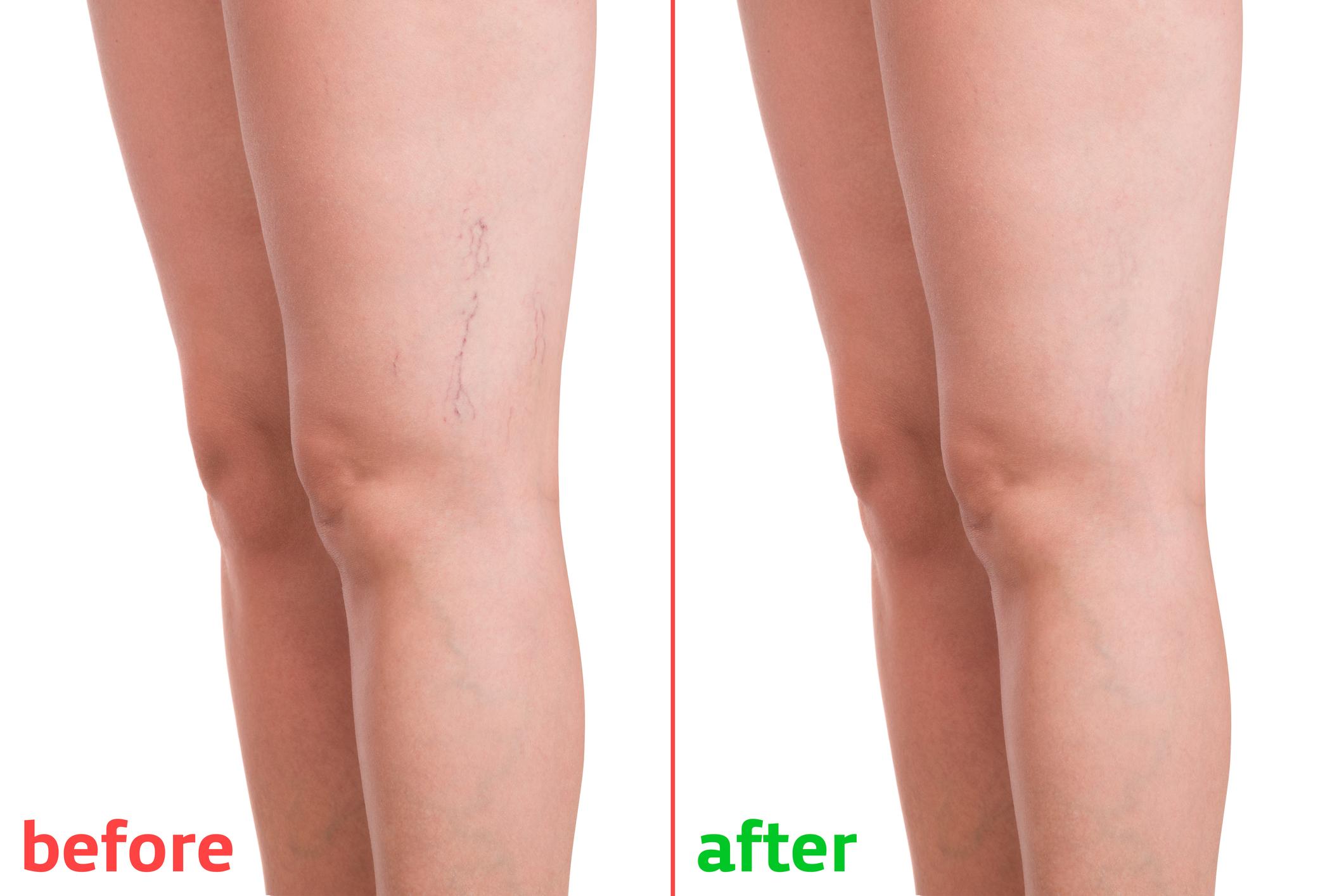 Visszér a lábakban férfiaknál: okok, tünetek, kezelés - Megelőzés