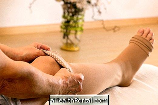 a varikózis a lábakon gyorsan lábműtét visszér videók véleménye