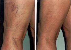 visszerek kezelése a lábakon kenőcsök