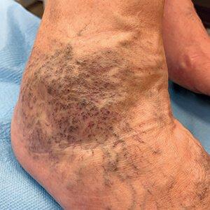 a lábak visszeres tüneteivel