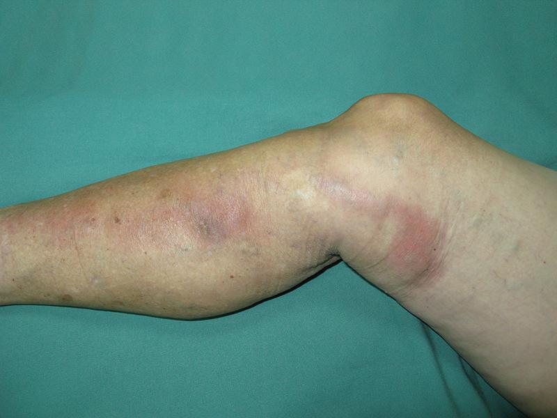 visszeres irritáció a lábakon