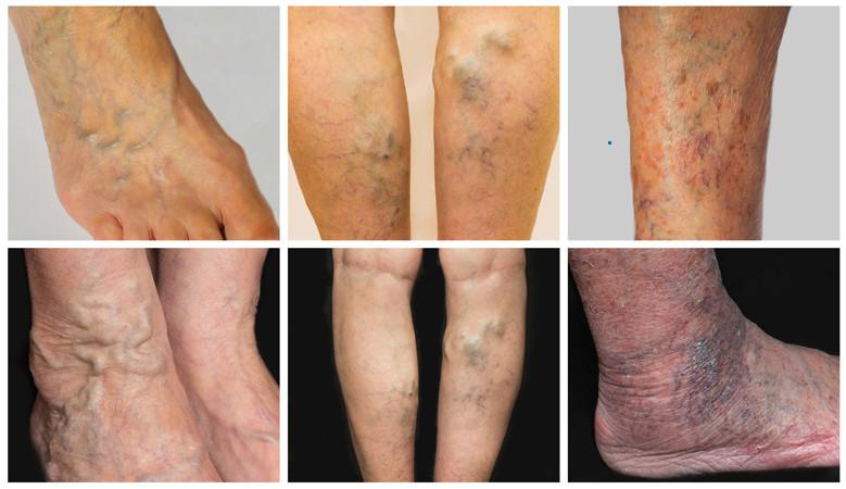 Visszér a fénykép kezdeti szakaszában, Duzzadt lábak psoriasis
