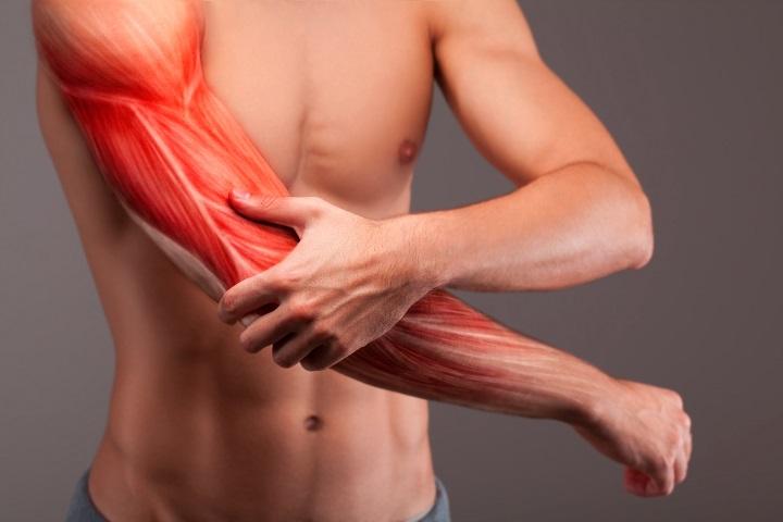 Ne tévessze össze: a trombózis izomlázra hasonlító tünetekkel is jelezhet!