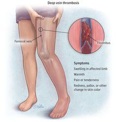 hogyan lehet a legjobban gyógyítani a lábak varikózisát lehetséges-e hidegen bebugyolálni visszerekkel