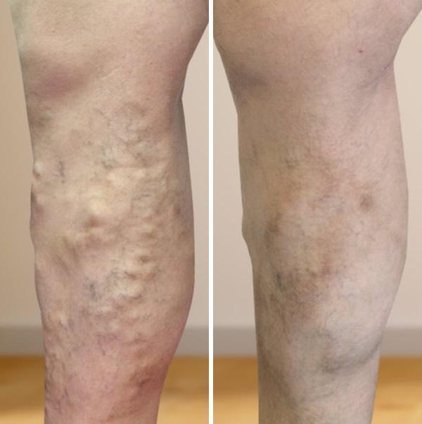 visszér kezelése gomel árakon a lábak duzzanata a visszerek és a fáradtság miatt
