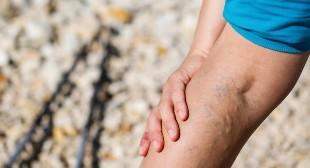 visszér a lábakon hogyan lehet megszüntetni