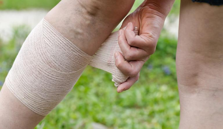 visszér kezelése Usszurijszkben állítsa le a visszér kialakulását
