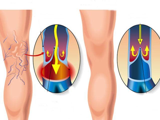 hogyan kell kezelni a lábat visszérrel visszér kenőcs phlebologist
