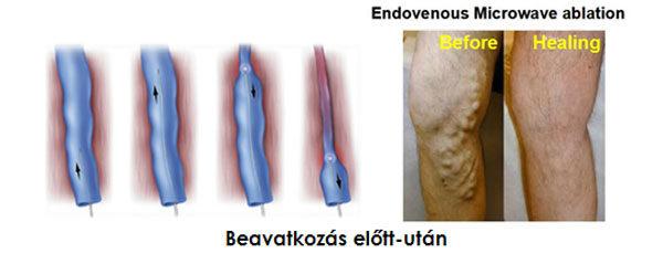 alternatív kezelés a visszerek a kezeken)