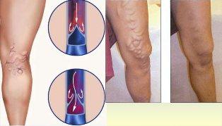 visszér statikus terhelések videó a lábakon visszeres műtétről