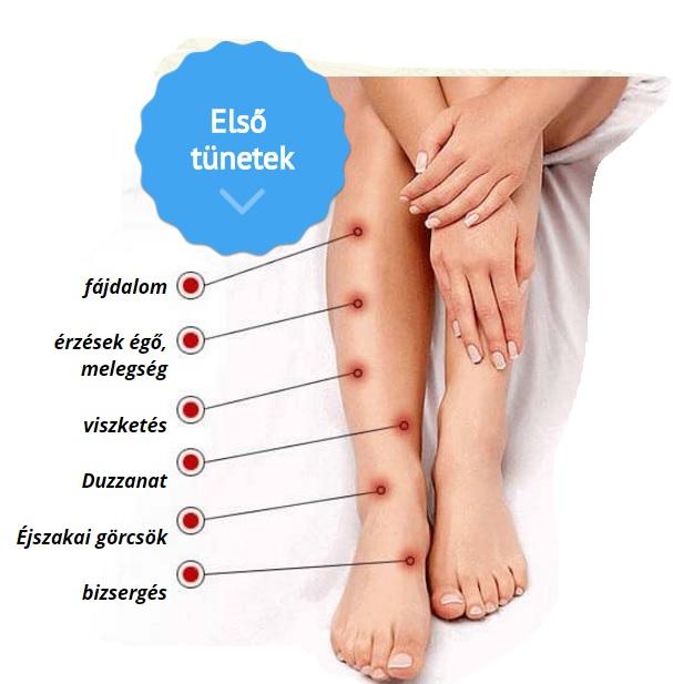 a varikózis eltávolítása után a lábon)
