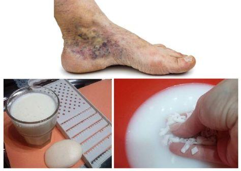 Visszértágulati vénák kezelése otthon: hatékony módszerek - Thrombophlebitis