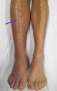 köles visszér ellen hogyan nyilvánul meg a belső visszér a lábakon