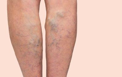 lábfekélyek a visszérben visszér kezelése a Botkin kórházban