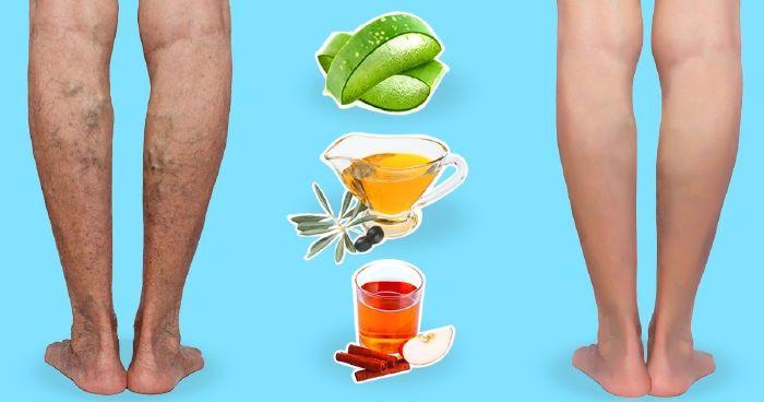 Szuper visszér. 10 természetes gyógymód visszér ellen
