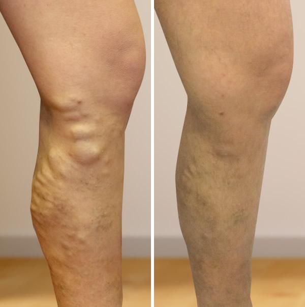 égési láb visszér venectomia visszér