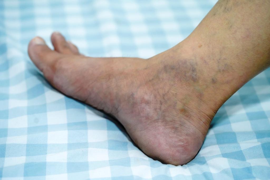 a lábak ekcémájának visszeres kezelése Segít-e a guggolás a visszér ellen