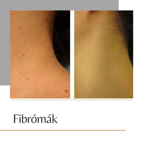 Seprűvéna kezelés, hajszálér kezelés