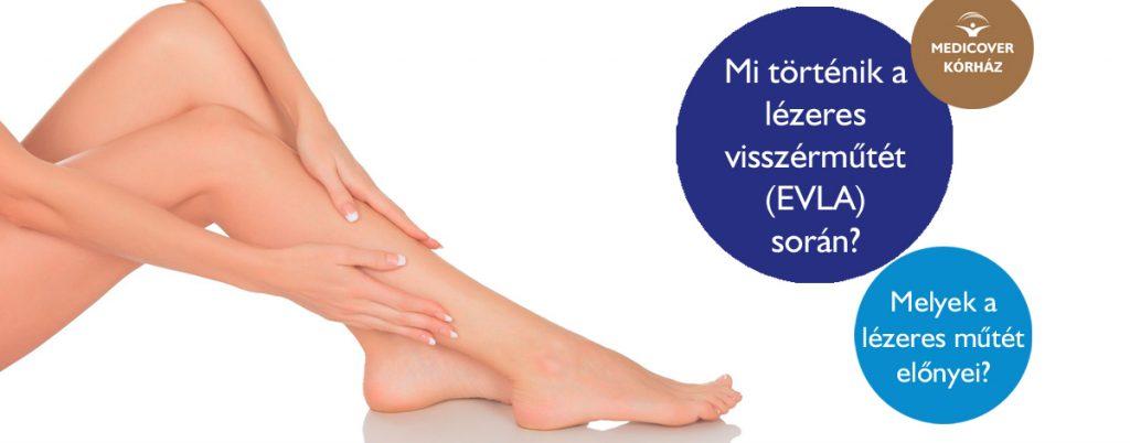a varikózis eltávolítása a lábakon lézeres következményekkel