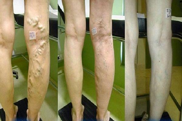 Ficus a visszér kezelésében - Hogyan kezelhető a visszeres láb?