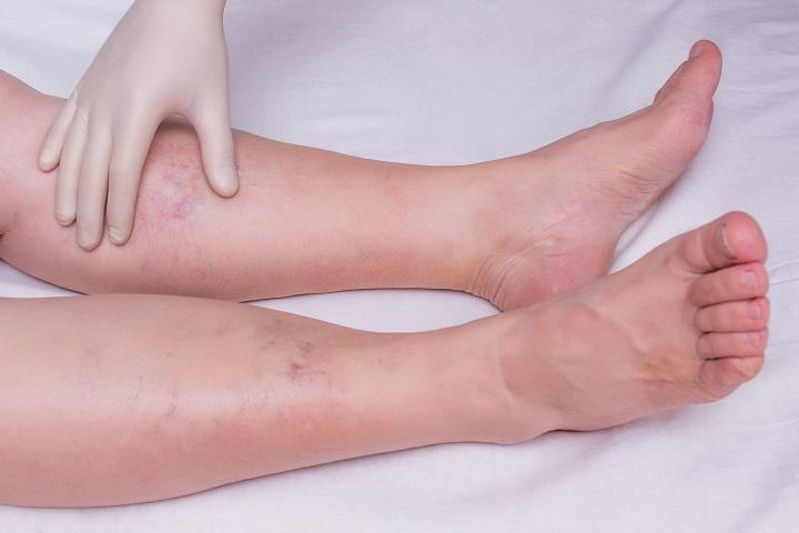 a lábujj zsibbadása visszeres