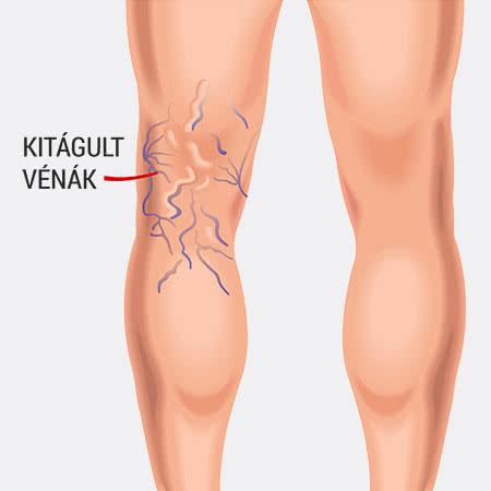 a női szervek varikózisának tünetei