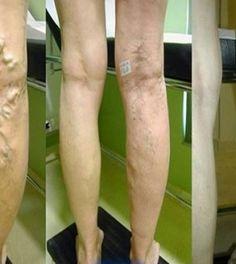 Fájdalom a visszér lábainak borjaiban Veszélyes tünetek